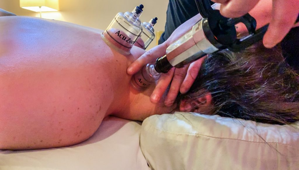 Cupping Therapy, cupping and massage therapy, best massage with cupping