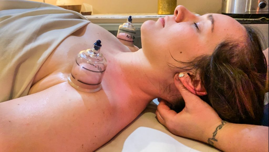 cupping therapy with deep tissue, best massage of Columbus Ohio, sports massage, deep tissue massage